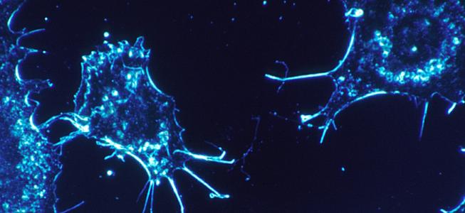 Ahora detectar el cáncer de ovario es más efectivo