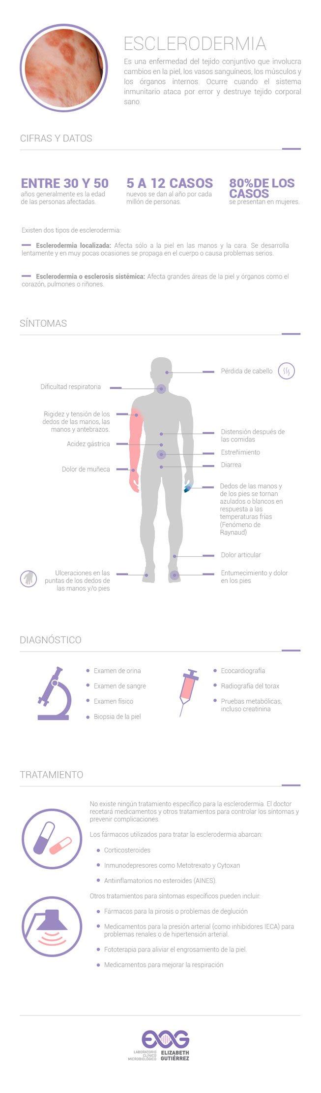Infografía - Esclerodermia